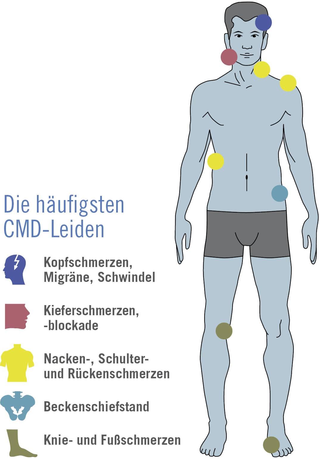 Schmerzpunkte CMD